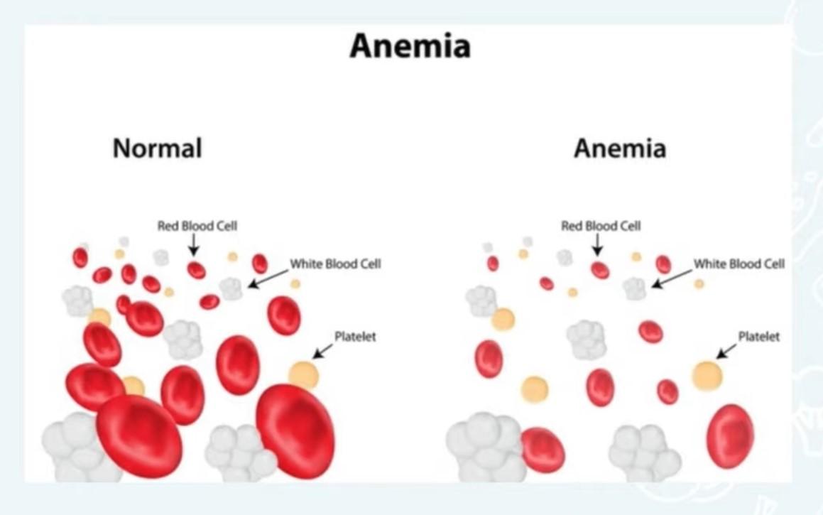 Sel daarah penderita anemia